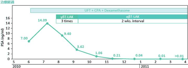 日本免疫细胞治疗案例-前列腺癌