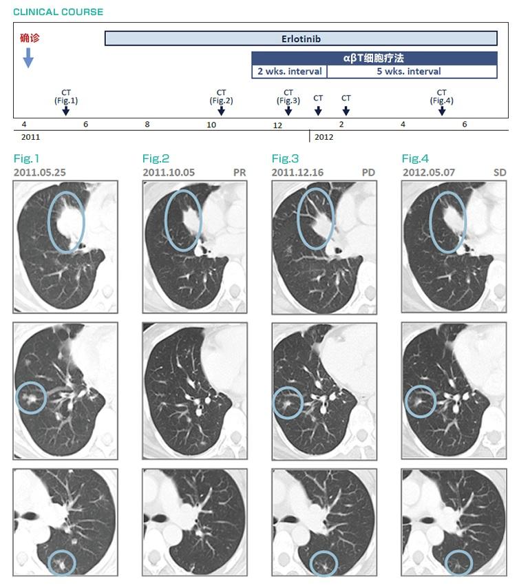 厄洛替尼耐药后,免疫细胞治疗(αβT细胞疗法)治疗后维持稳定状态的肺癌(IV期)案例