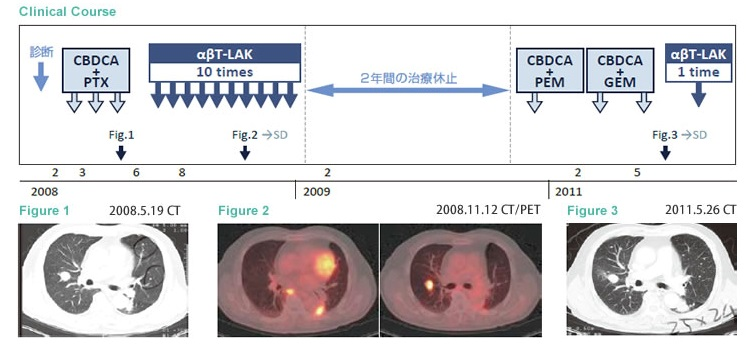 αβT细胞治疗维持三年稳定状态的肺腺癌案例1