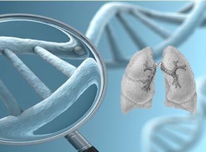 肺癌手术前要做哪些检查
