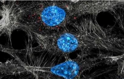 新发现:肿瘤细胞利用调节性T细胞逃避免疫防御