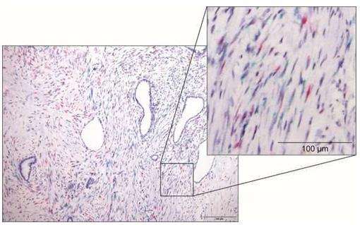 名古屋大学:已经确定胰腺癌中存在抑制癌细胞的细胞