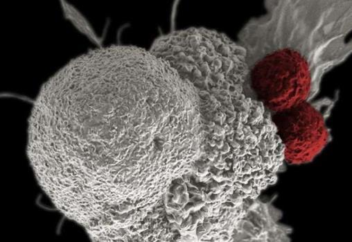 基因编辑的T细胞如何对抗癌症
