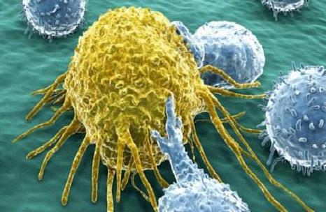 癌症恶病质的治疗-药物治疗取得良好效果