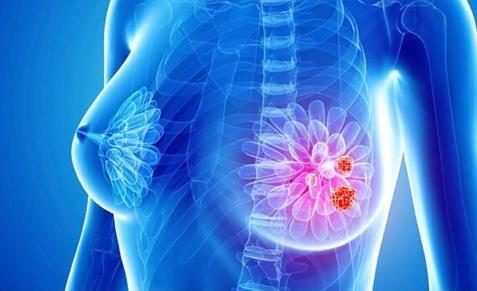 新靶向药物CDK4/6抑制剂和PARP抑制剂使激素受体阳性乳腺癌的治疗更为高效