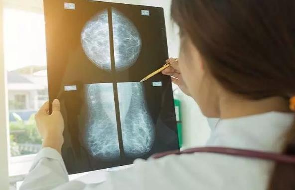 海外医讯 | 人工智能击败了传统的乳腺癌诊断