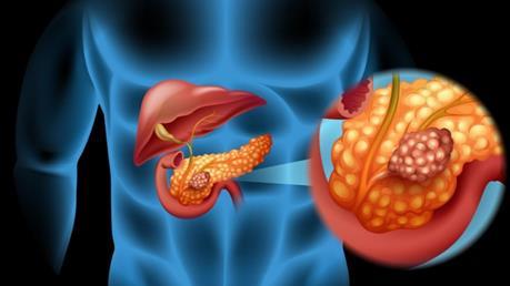 2019年胰腺癌治疗信息汇总