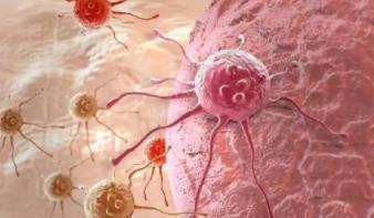 癌症是否会通过活检扩散
