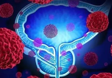 日本专家谈肿瘤・前列腺癌