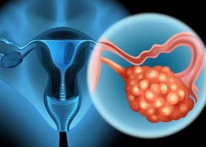 日本专家谈肿瘤・卵巢癌