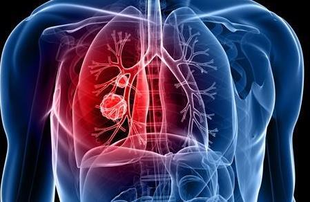 非小细胞肺癌新药日本上市——特波替尼(tepotinib)
