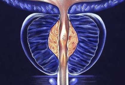 PSMA-PET-CT可显著提升前列腺癌早期转移诊断的准确率