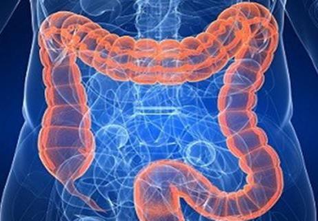 腹腔热灌注化疗不会改善结直肠癌腹膜扩散的预后