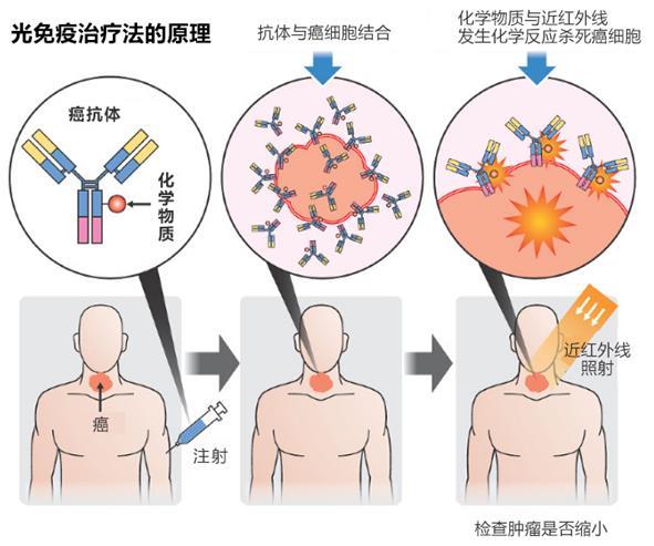 日本:全球首款光免疫疗法药物获批,癌症新疗法—光免疫疗法有望加速