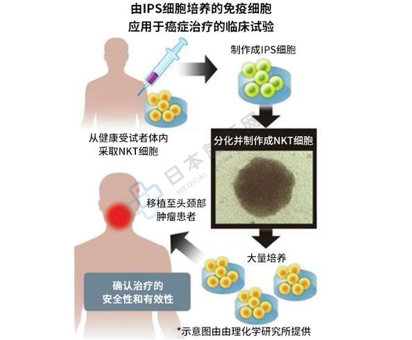 免疫细胞治疗新方向?日本首次利用IPS细胞分化成免疫细胞应用于癌症治疗