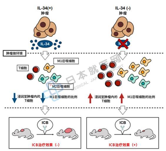 日本发现白介素34可抑制免疫治疗效果,以白介素-34为靶点的新疗法有望开发