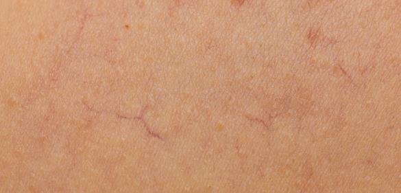 利妥昔单抗在日本首次证明对系统性硬皮病有效