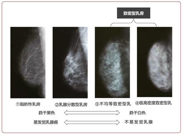 日本乳腺癌学会发布《乳腺癌患者指南》2019年版(三)