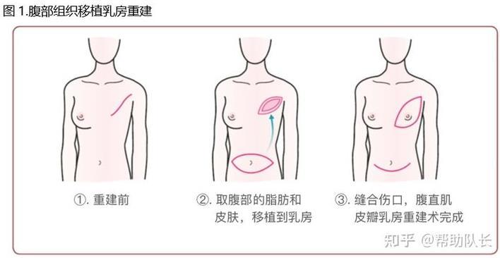 日本乳腺癌学会发布《乳腺癌患者指南》2019年版(七)
